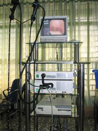 Máy nội soi tiêu hóa EV 200 của Nhật Bản: 1