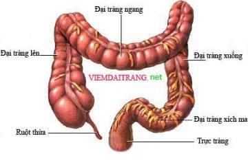 Viêm loét đại – trực tràng chảy máu (còn gọi là viêm loét đại tràng)