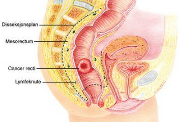 Cách phát hiện sớm bệnh ung thư đại trực tràng