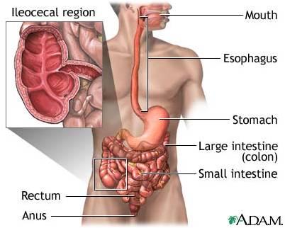 Bệnh Crohn là gì? 1