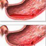 Nguyên nhân của viêm dạ dày cấp và mạn tính