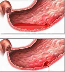Nguyên nhân của viêm dạ dày cấp và mạn tính 1