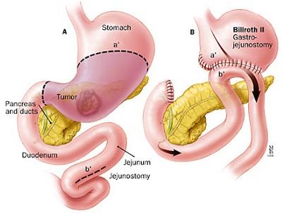 Chế độ ăn sau mổ cắt dạ dày 2