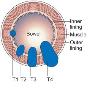 Điều trị ung thư đại tràng giai đoạn sớm 1