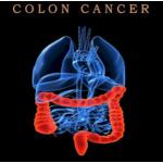 Điều trị ung thư đại tràng giai đoạn cuối