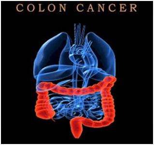 Điều trị ung thư đại tràng giai đoạn cuối 1