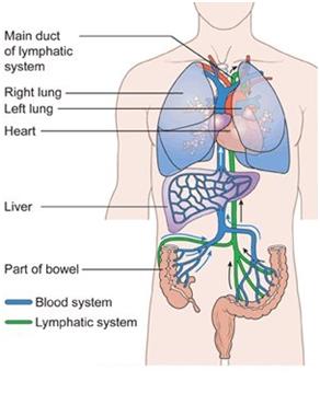 Hóa trị với ung thư đại tràng giai đoạn cuối 1