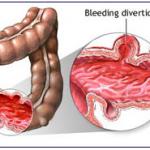 Triệu chứng bệnh ung thư đại tràng