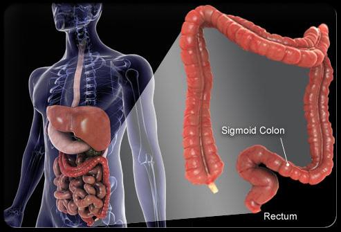 Tổng quan về ung thư đại tràng và trực tràng 1