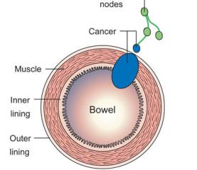 Giai đoạn của ung thư đại tràng