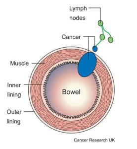 Giai đoạn của ung thư đại tràng 1