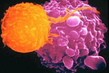 Những lời khuyên trong việc điều trị ung thư đại tràng