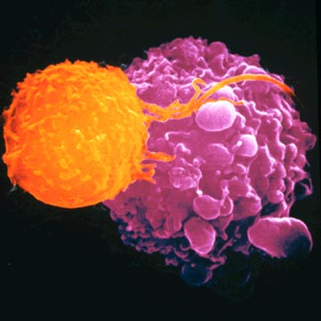 Những lời khuyên trong việc điều trị ung thư đại tràng 1