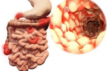 Viêm đại tràng: triệu chứng và tổn thương