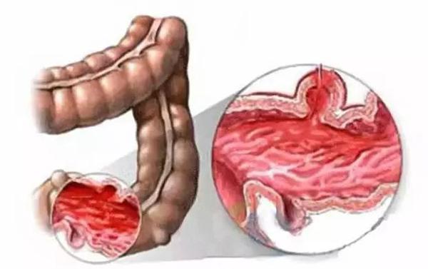 3. Bệnh viêm ruột 1