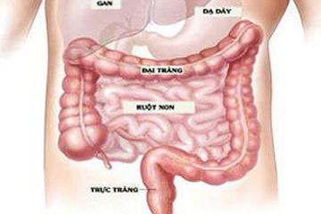 Rối loạn tiêu hóa lâu ngày có phải viêm đại tràng