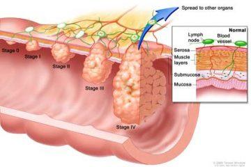 Bệnh ung thư đại tràng – Những điều cần biết
