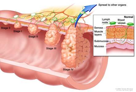 Bệnh ung thư đại tràng - Những điều cần biết 1