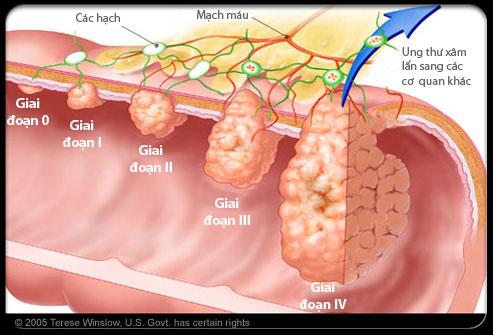 ung thu dai trang3 Phương pháp<br /> điều trị ung thư đại tràng
