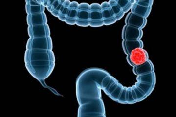 Dinh dưỡng cho bệnh ung thư đại tràng như thế nào?