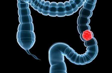 Dinh dưỡng cho bệnh ung thư đại tràng như thế nào? 1
