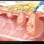 Phẫu thuật ung thư đại tràng tái phát
