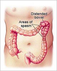 Năm điều cần biết về Hội chứng ruột kích thích 1