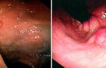 Nguyên nhân gây polyp đại tràng và phòng tránh