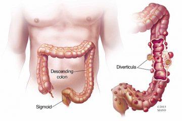 Triệu chứng túi thừa đại tràng và điều trị