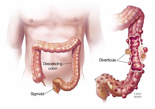 Triệu chứng túi thừa đại tràng và điều trị 1