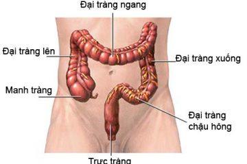 Dấu hiệu u đại tràng và chẩn đoán