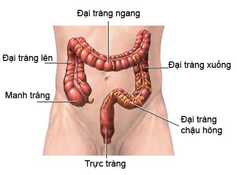 Dấu hiệu u đại tràng và chẩn đoán 1