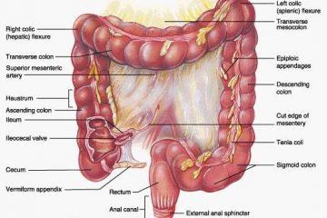 Viêm bờm mỡ đại tràng- Nguyên nhân, điều trị
