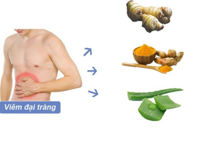 Bài thuốc chữa bệnh viêm đại tràng từ dân gian 1